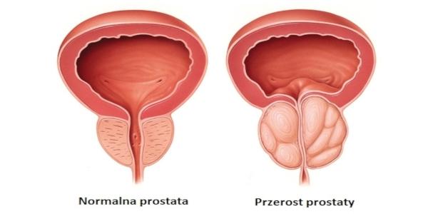 prostata objawy