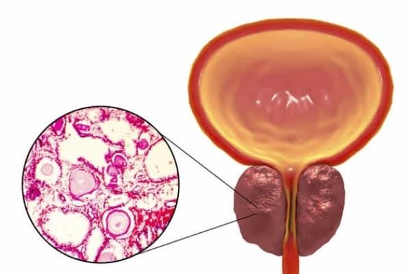 adenoma gruczolak prostaty