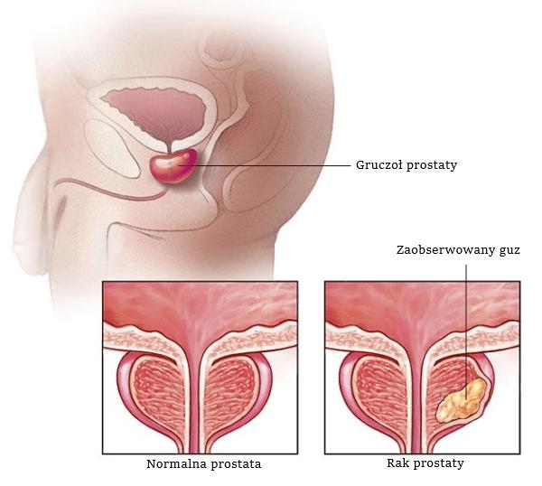 notowtór stercza - rak prostaty