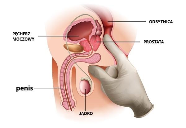 prostata zdjęcia