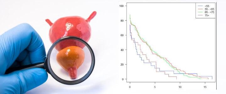 Czy to rak prostaty? Objawy i rokowania potencjalnego nowotworu