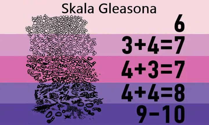 Skala Glesaona pozwoli ocenić stopień zaawansowania nowotworu
